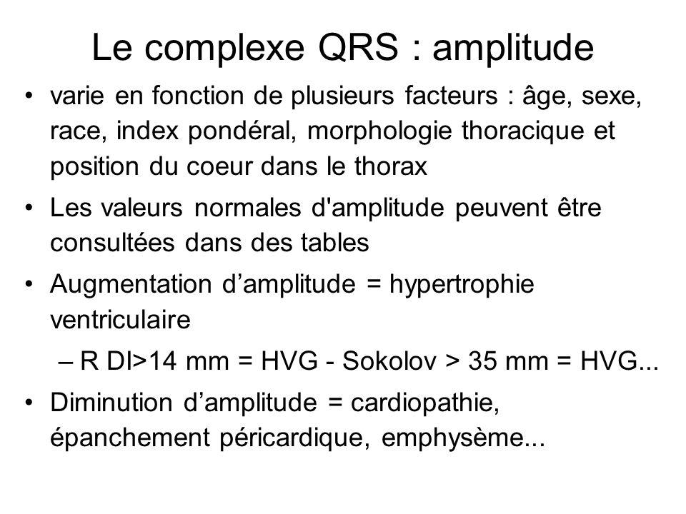 Le complexe QRS : amplitude