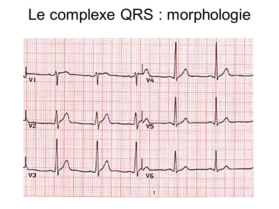 Le complexe QRS : morphologie