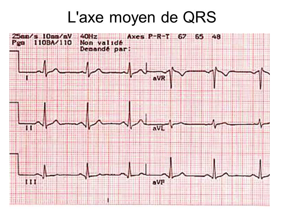 L axe moyen de QRS