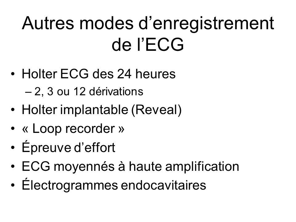 Autres modes d'enregistrement de l'ECG