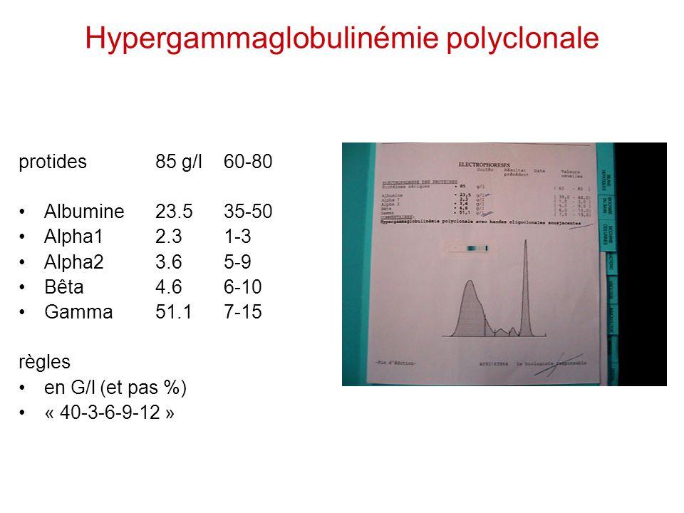 Hypergammaglobulinémie polyclonale
