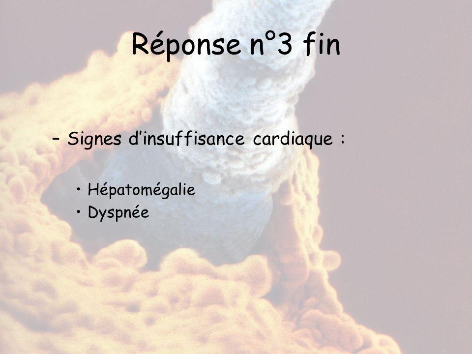 Réponse n°3 fin Signes d'insuffisance cardiaque : Hépatomégalie