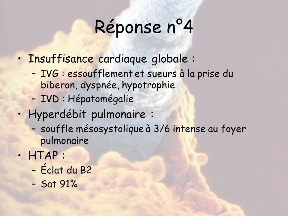 Réponse n°4 Insuffisance cardiaque globale : Hyperdébit pulmonaire :