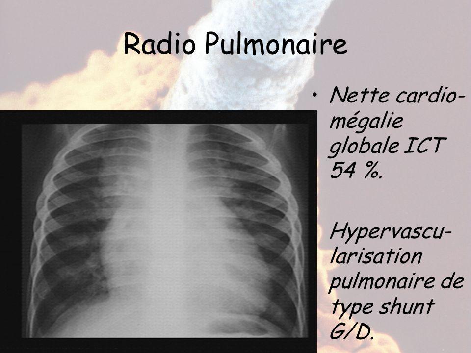 Radio Pulmonaire Nette cardio-mégalie globale ICT 54 %.