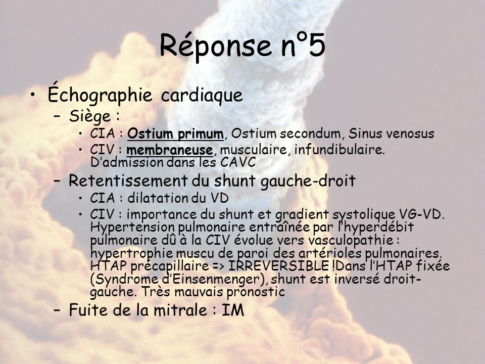 Réponse n°5 Échographie cardiaque Siège :
