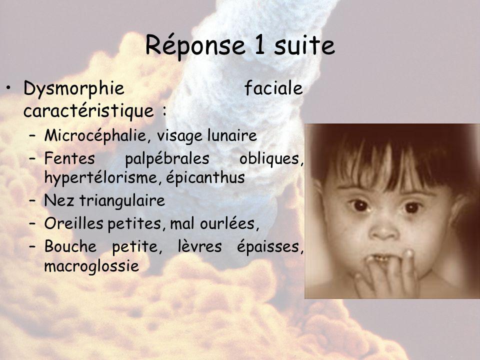Réponse 1 suite Dysmorphie faciale caractéristique :