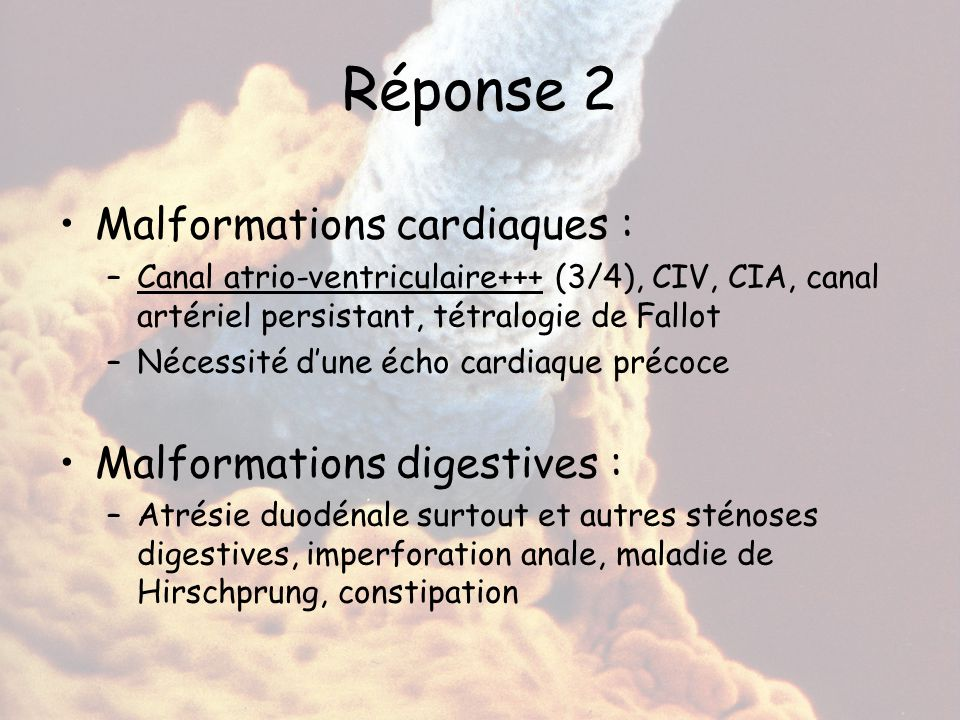 Réponse 2 Malformations cardiaques : Malformations digestives :