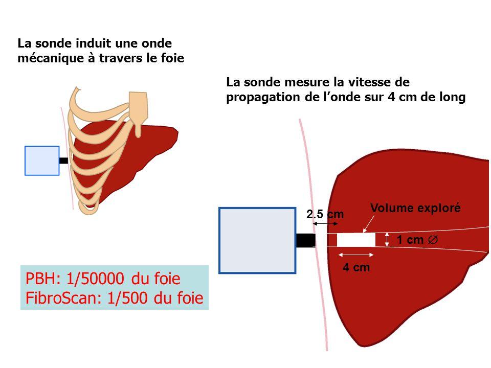 PBH: 1/50000 du foie FibroScan: 1/500 du foie
