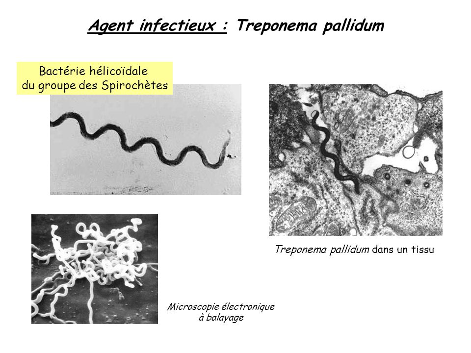 Agent infectieux : Treponema pallidum