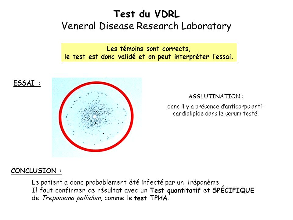 Test du VDRL Veneral Disease Research Laboratory