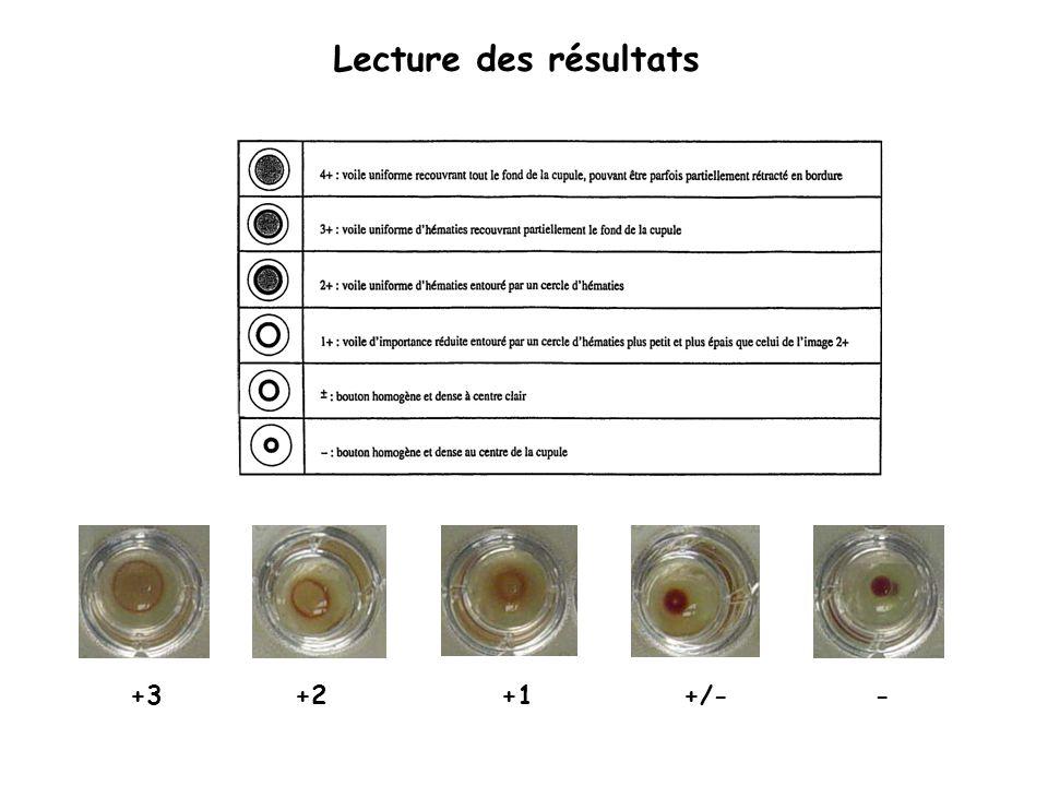 Lecture des résultats +3 +2 +1 +/- -