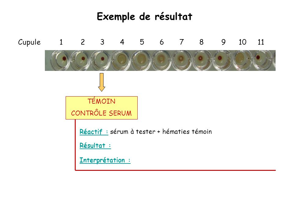 Exemple de résultat Cupule 1 2 3 4 5 6 7 8 9 10 11 TÉMOIN