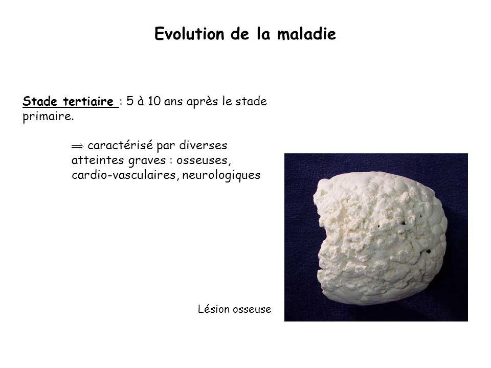 Evolution de la maladie