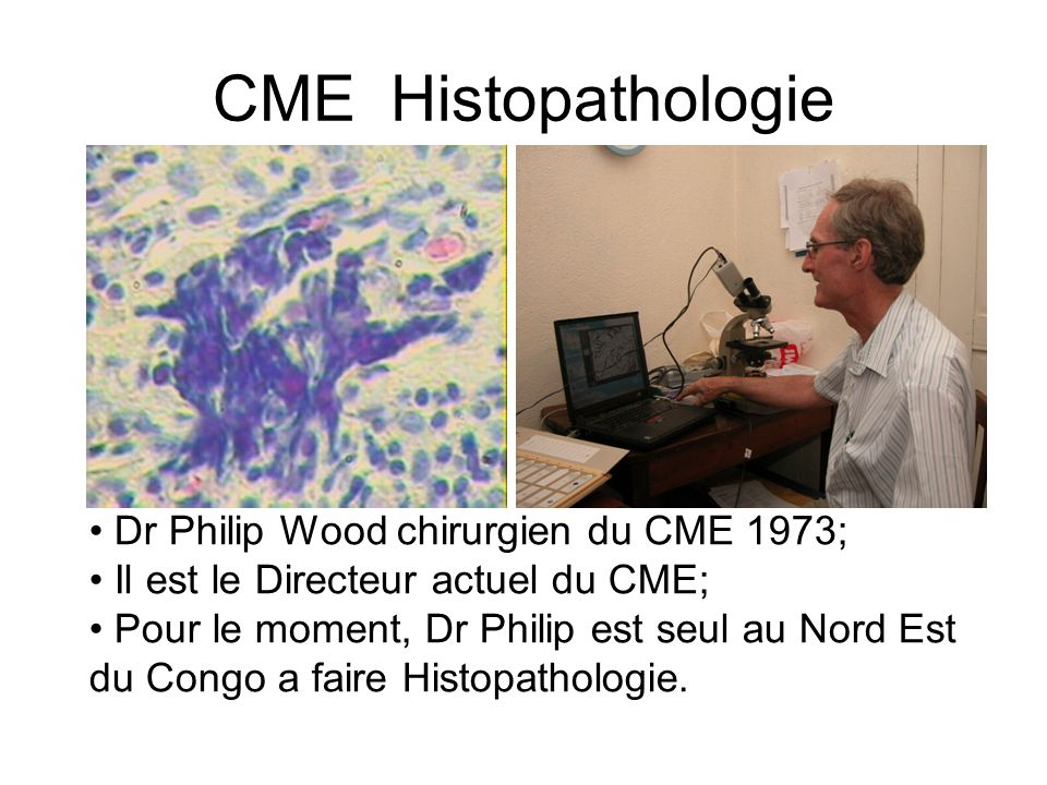 CME Histopathologie Dr Philip Wood chirurgien du CME 1973;