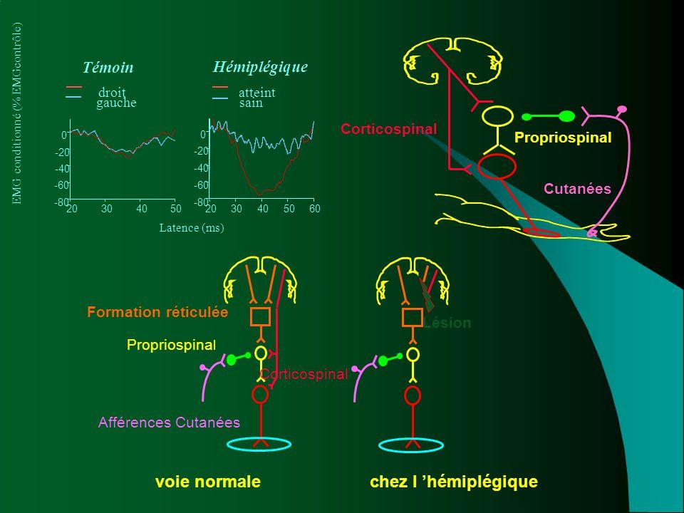 voie normale chez l 'hémiplégique