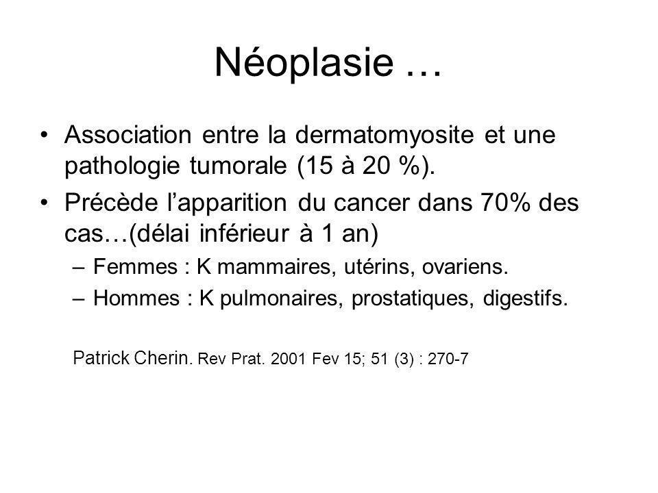 Néoplasie … Association entre la dermatomyosite et une pathologie tumorale (15 à 20 %).