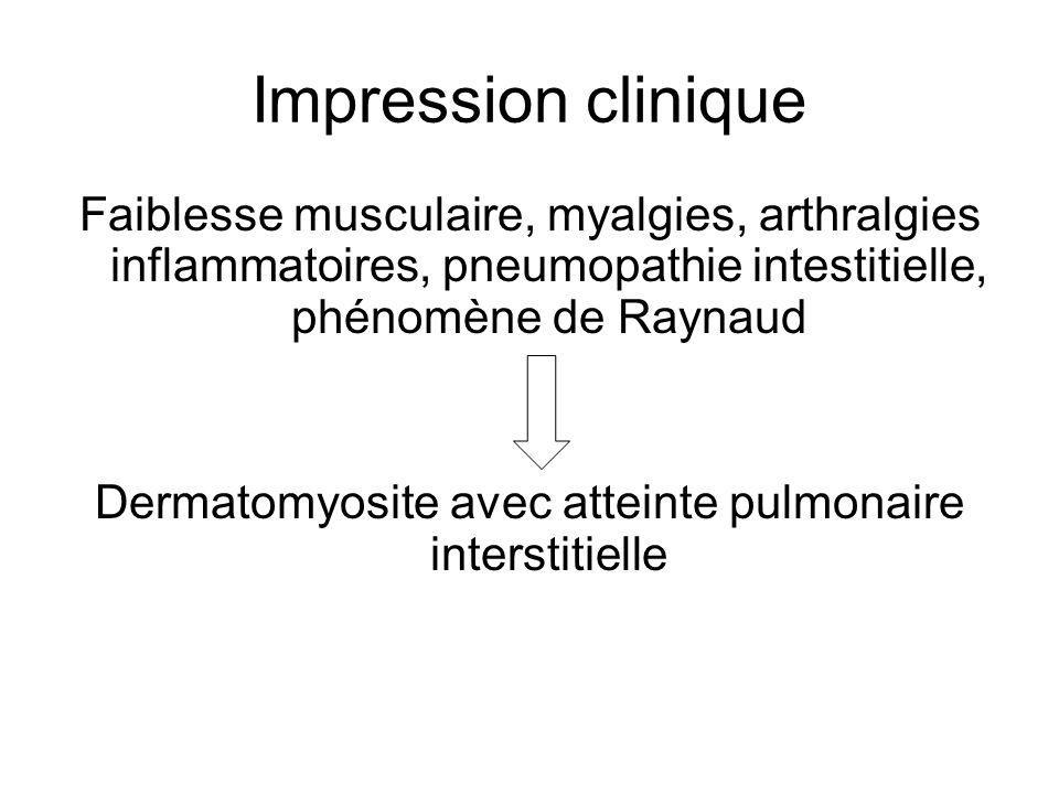 Dermatomyosite avec atteinte pulmonaire interstitielle