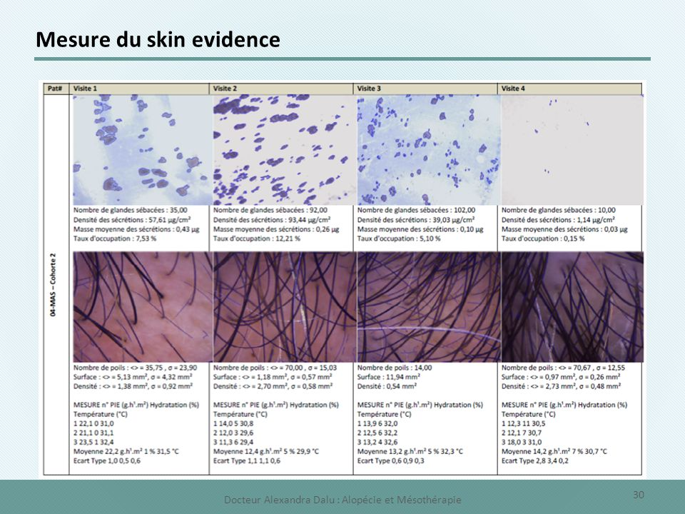 Mesure du skin evidence