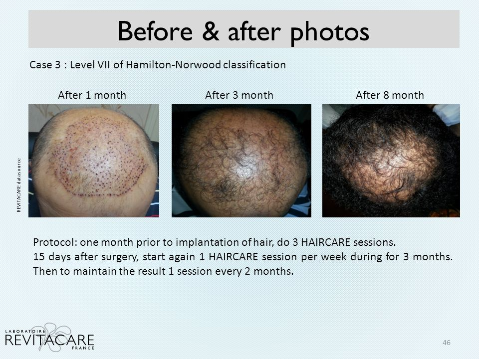 Before & after photos Case 3 : Level VII of Hamilton-Norwood classification. After 1 month. After 3 month.