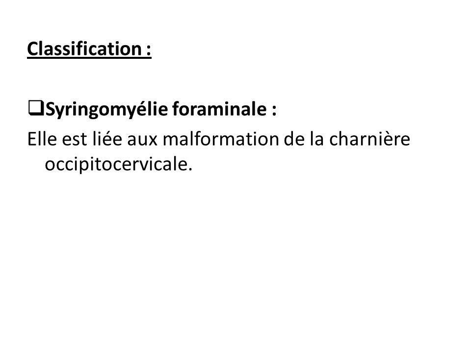 Classification : Syringomyélie foraminale : Elle est liée aux malformation de la charnière occipitocervicale.