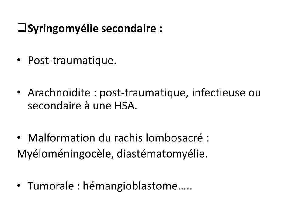 Syringomyélie secondaire :