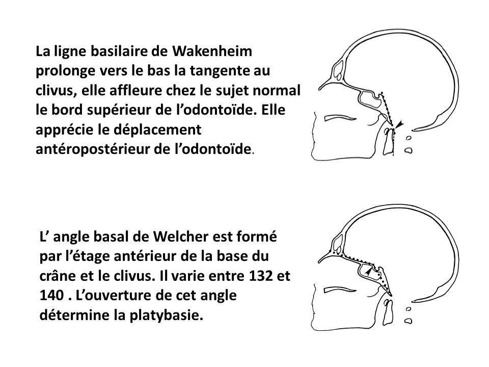 La ligne basilaire de Wakenheim