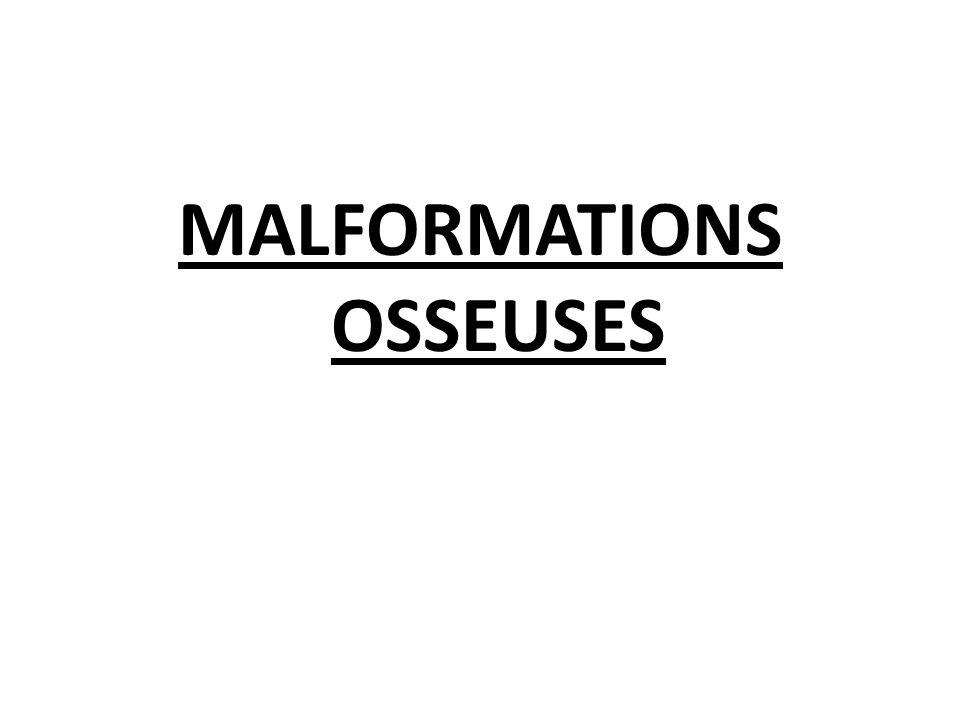 MALFORMATIONS OSSEUSES