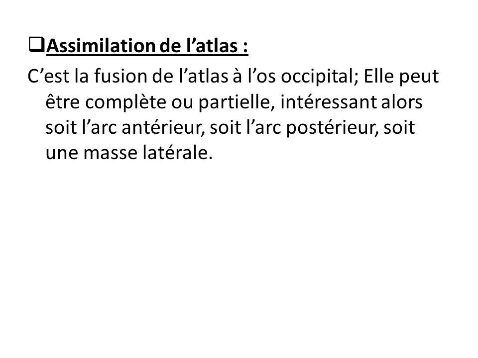 Assimilation de l'atlas :