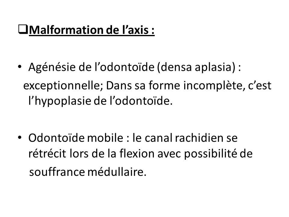 Malformation de l'axis :