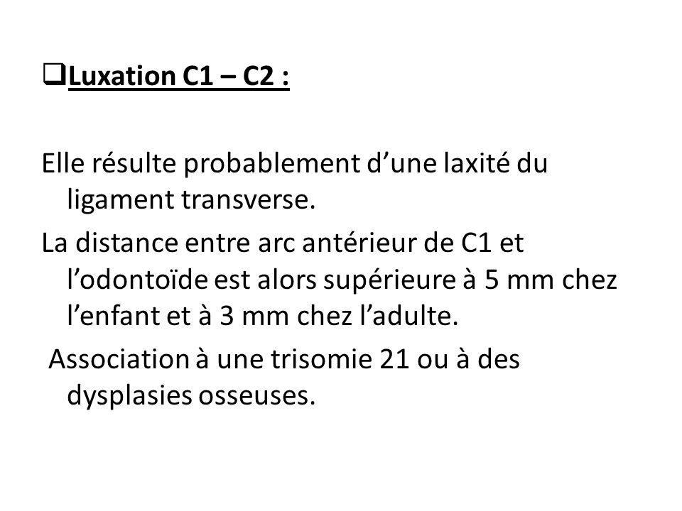 Luxation C1 – C2 : Elle résulte probablement d'une laxité du ligament transverse.