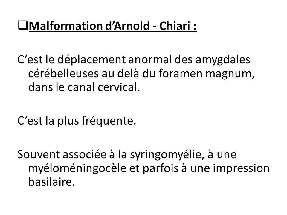 Malformation d'Arnold - Chiari :
