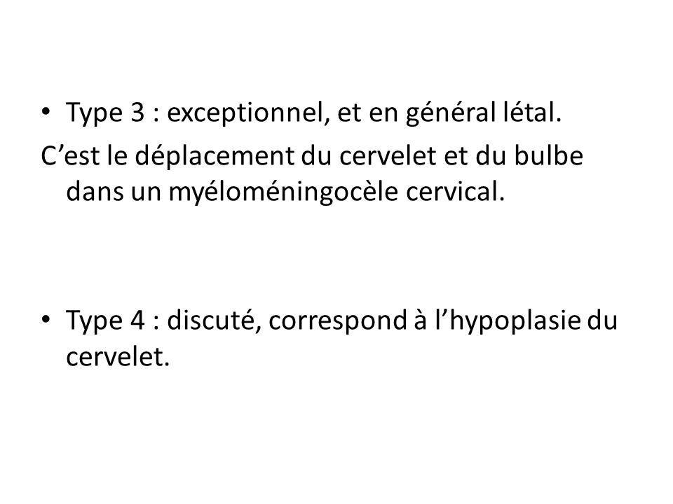 Type 3 : exceptionnel, et en général létal.