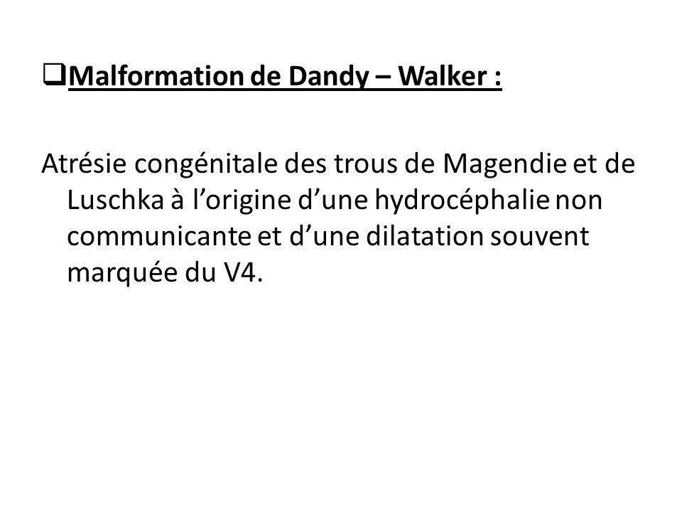 Malformation de Dandy – Walker :