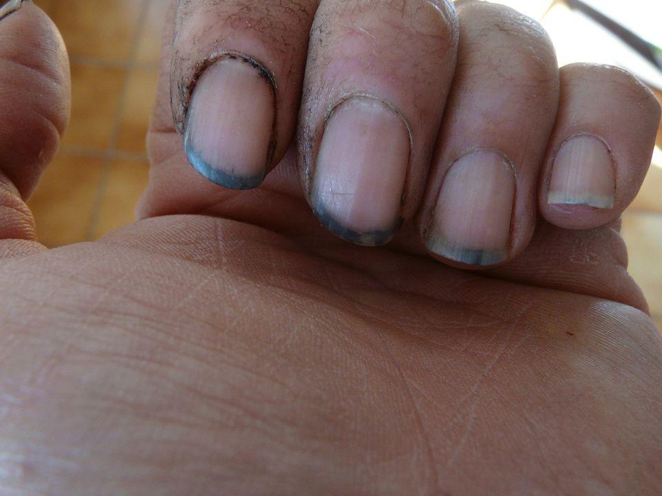 Soins corporels Les conséquences d'une peau sale…