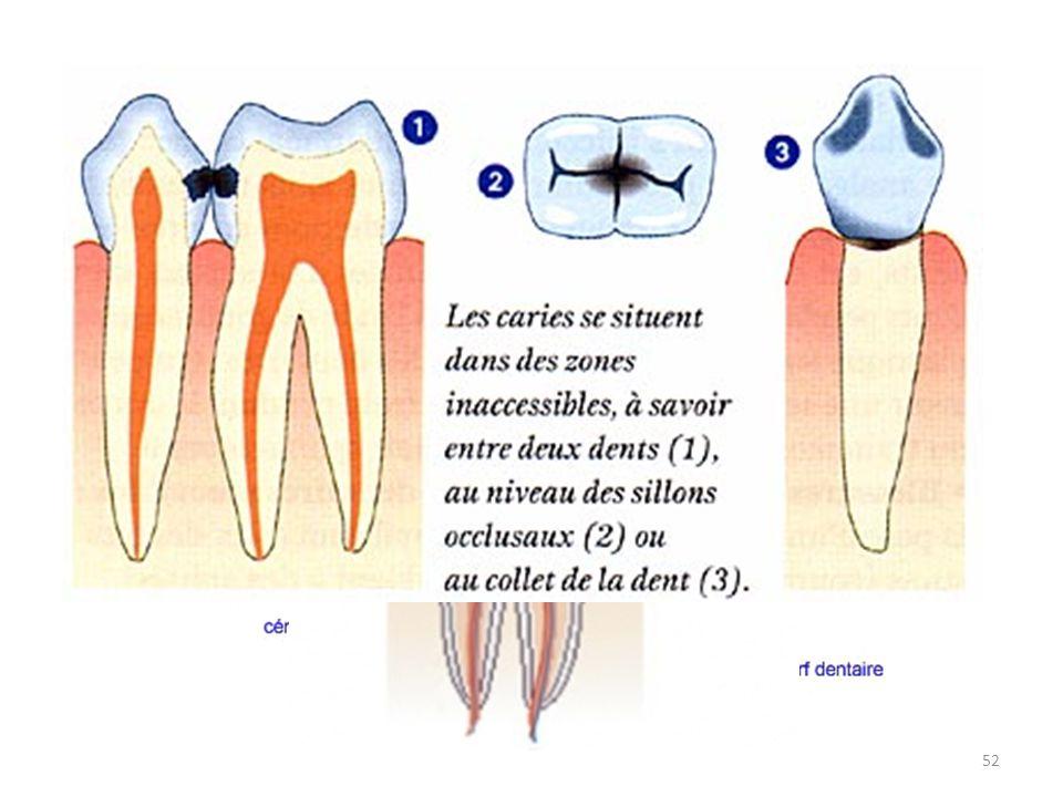 L'hygiène dentaire La carie, c'est quoi exactement