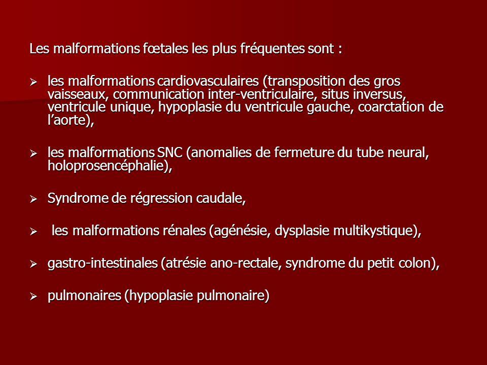 Les malformations fœtales les plus fréquentes sont :