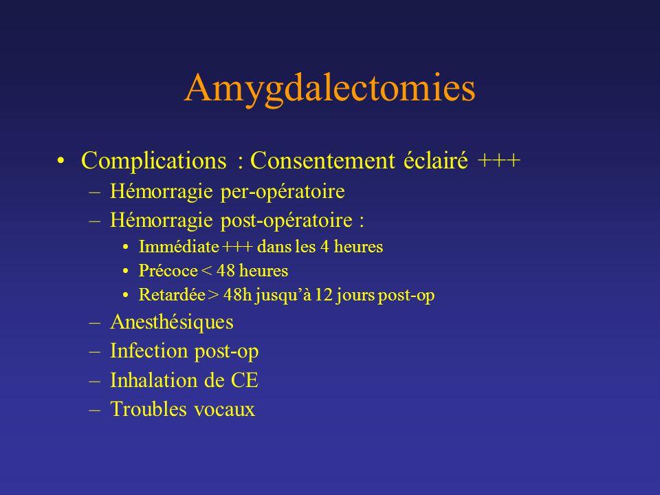 Amygdalectomies Complications : Consentement éclairé +++