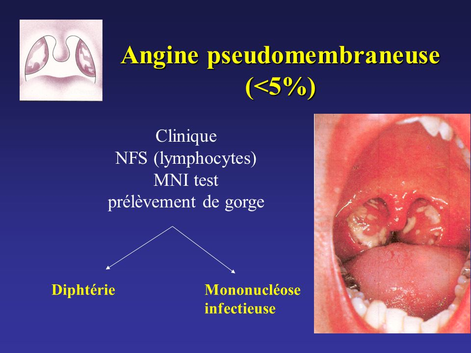 Angine pseudomembraneuse