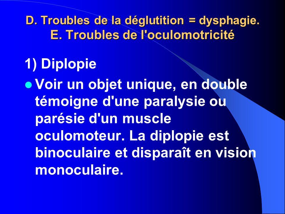 D. Troubles de la déglutition = dysphagie. E