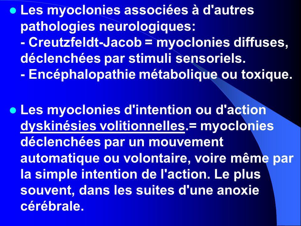 Les myoclonies associées à d autres pathologies neurologiques: - Creutzfeldt-Jacob = myoclonies diffuses, déclenchées par stimuli sensoriels. - Encéphalopathie métabolique ou toxique.