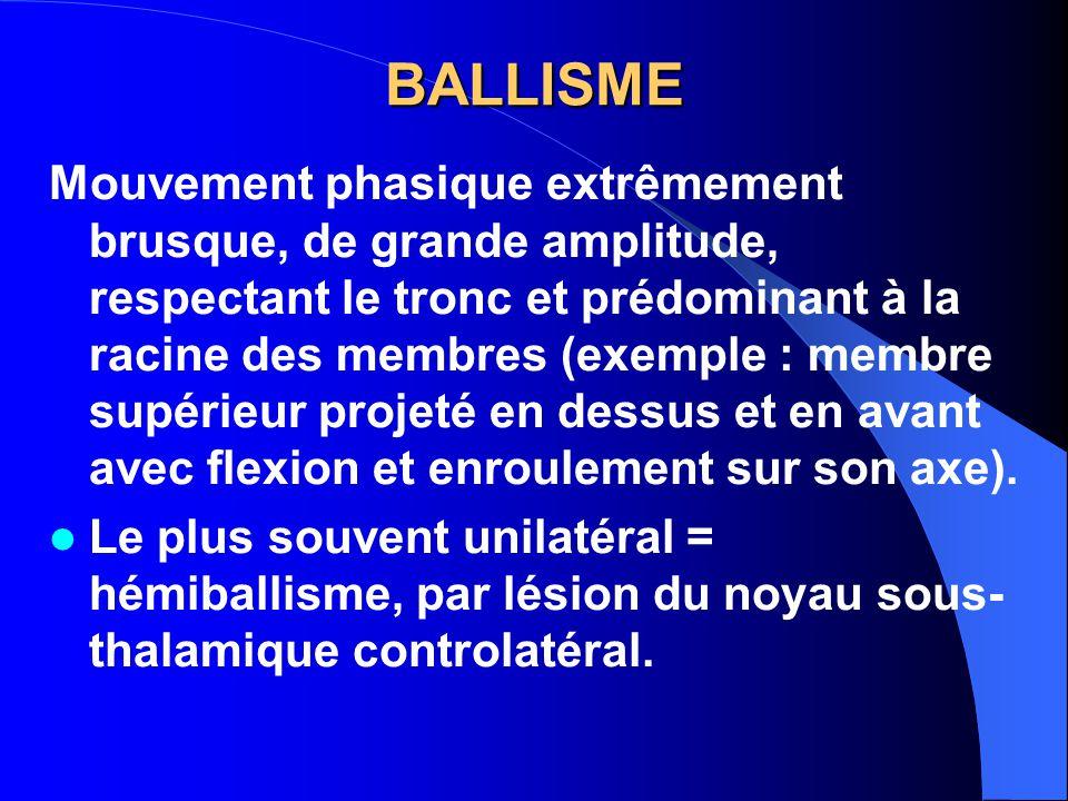BALLISME
