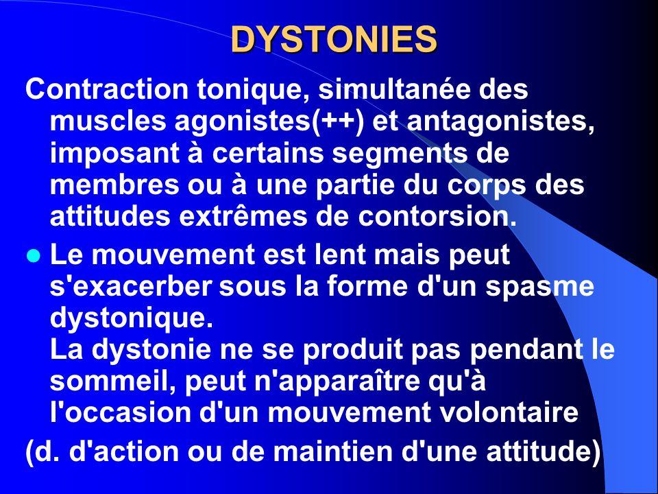 DYSTONIES
