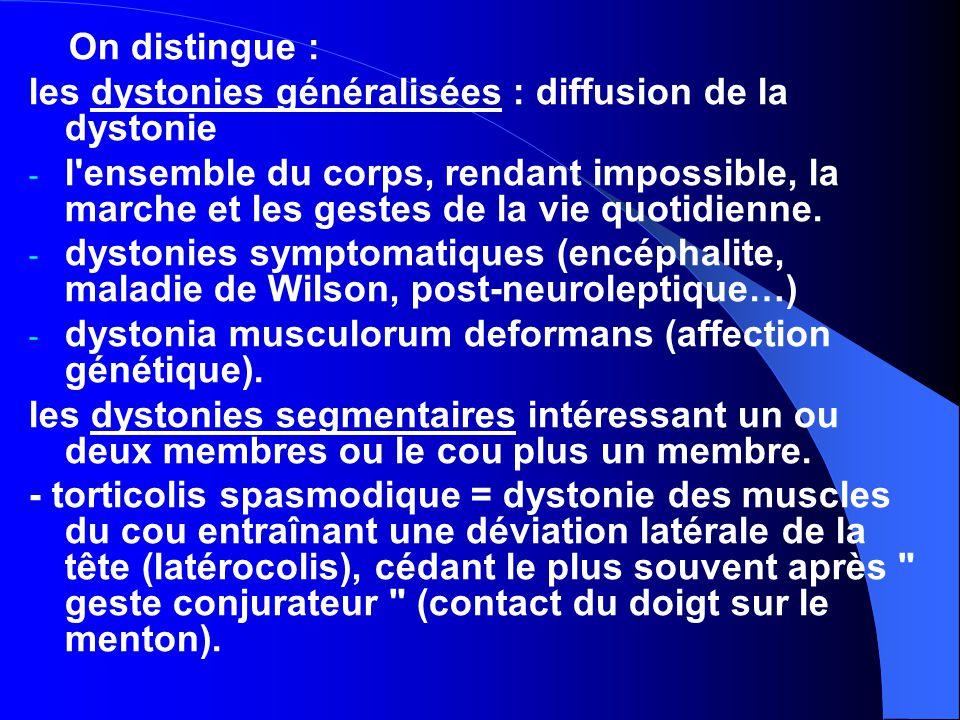 les dystonies généralisées : diffusion de la dystonie