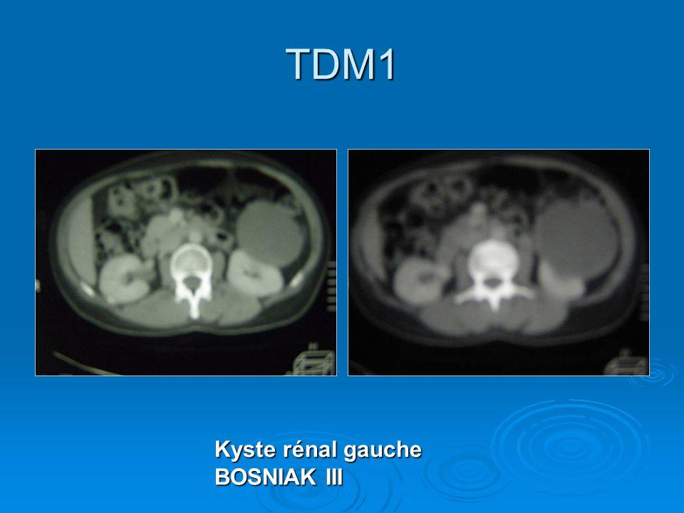 TDM1 Kyste rénal gauche BOSNIAK III