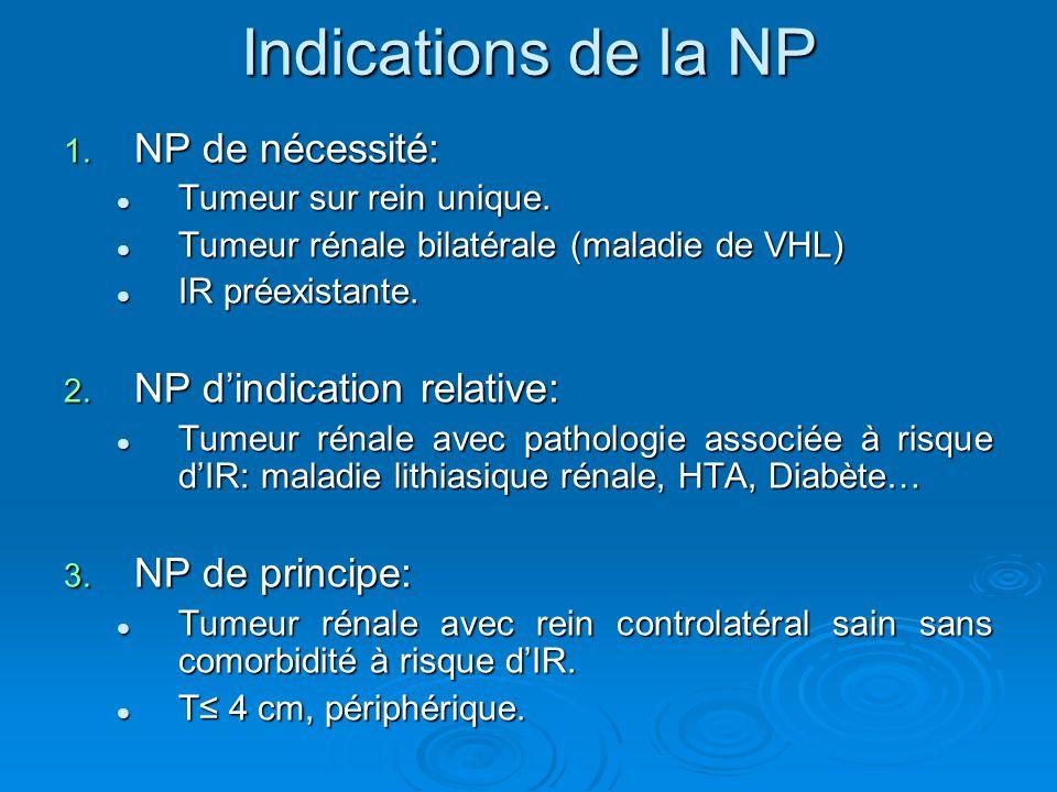 Indications de la NP NP de nécessité: NP d'indication relative: