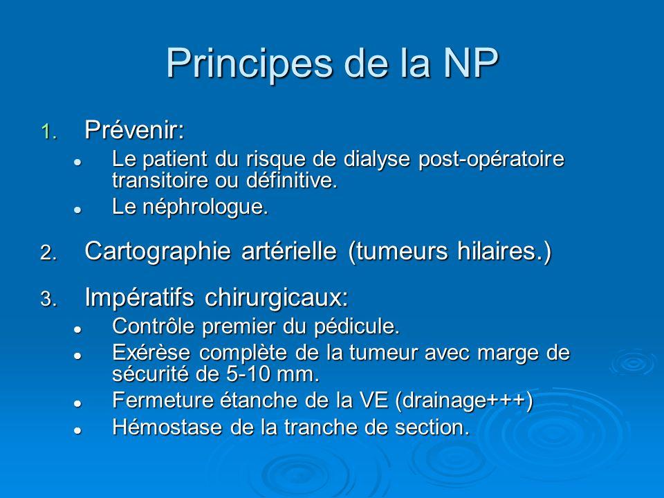 Principes de la NP Prévenir: