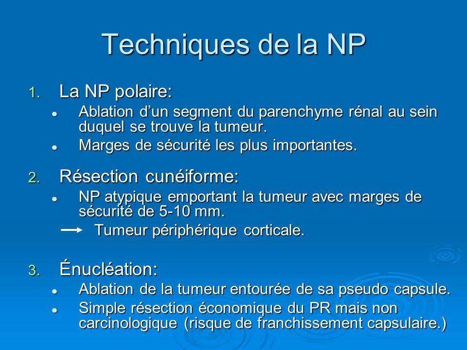 Techniques de la NP La NP polaire: Résection cunéiforme: Énucléation: