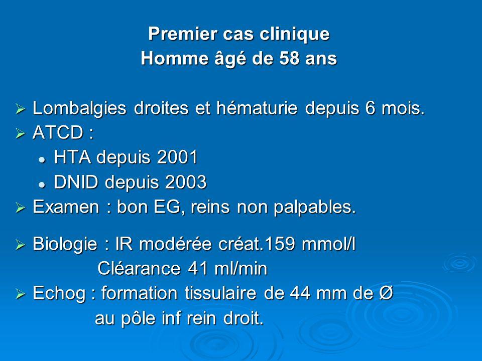 Premier cas clinique Homme âgé de 58 ans. Lombalgies droites et hématurie depuis 6 mois. ATCD : HTA depuis 2001.