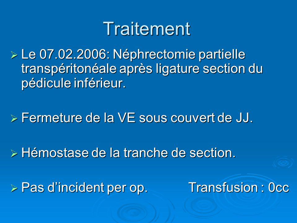Traitement Le 07.02.2006: Néphrectomie partielle transpéritonéale après ligature section du pédicule inférieur.