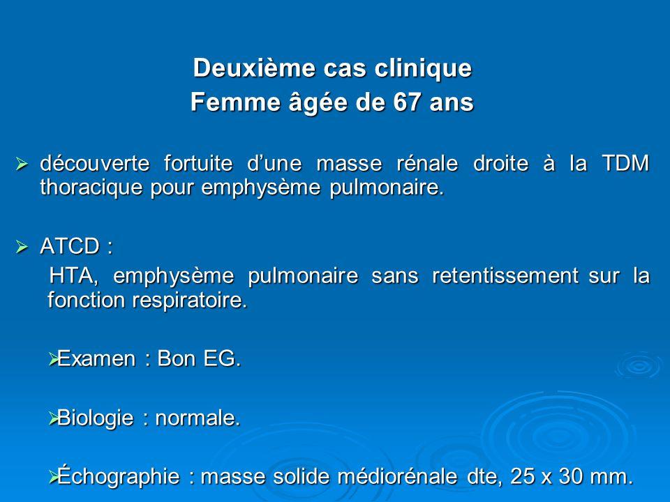 Deuxième cas clinique Femme âgée de 67 ans